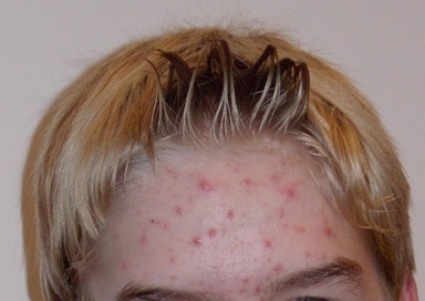A young boy with acne on his forehead